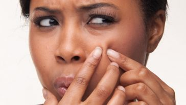 how to get rid of acne and pimples